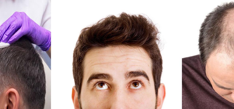 Hair-Loss-Remedies-for-Men